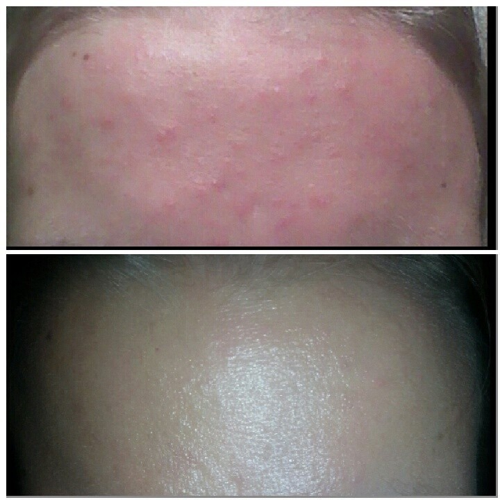 Microcystic Acne Skin Care