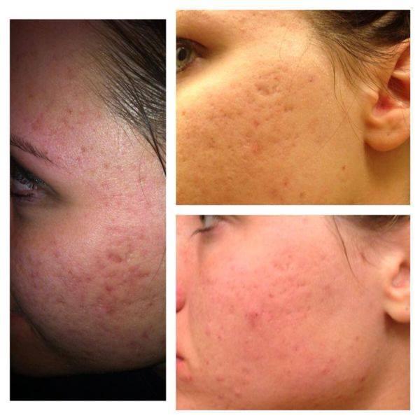 Acne regimen hard at work