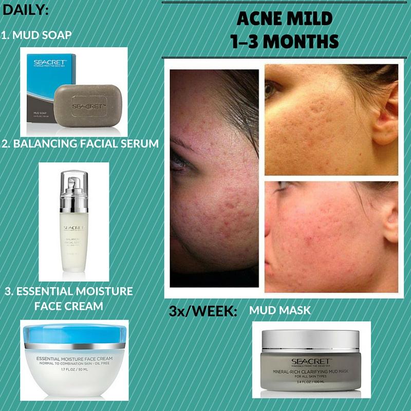Mild Acne Regimen