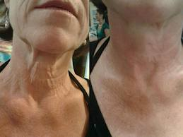 Aging Neck Line