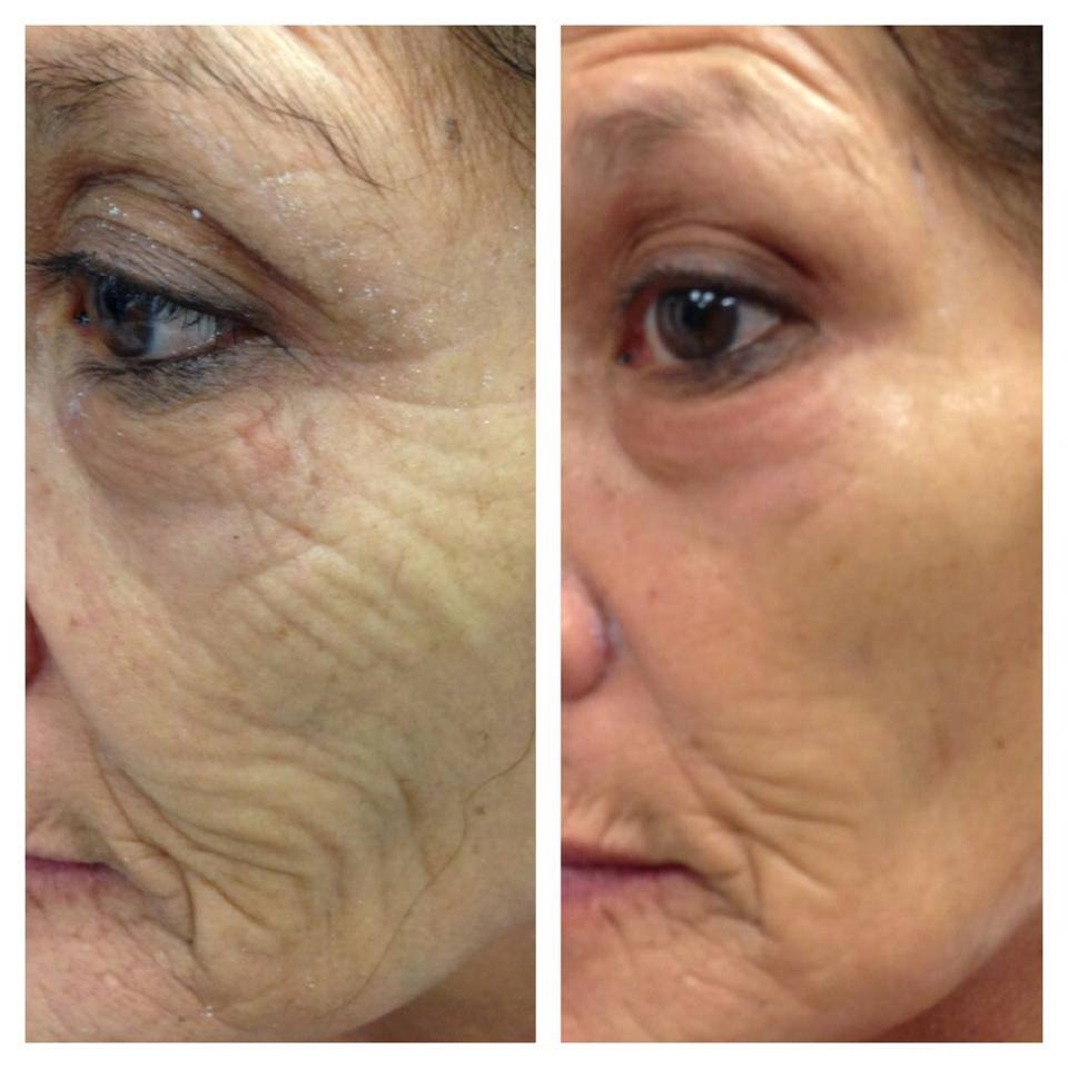 Aging: Before And After Skin Care Photos Show Proven Results