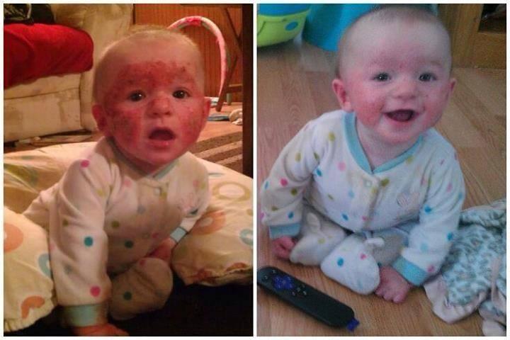 Baby Face Eczema