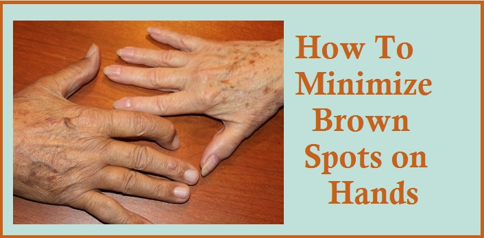 Brown Spots on Hands