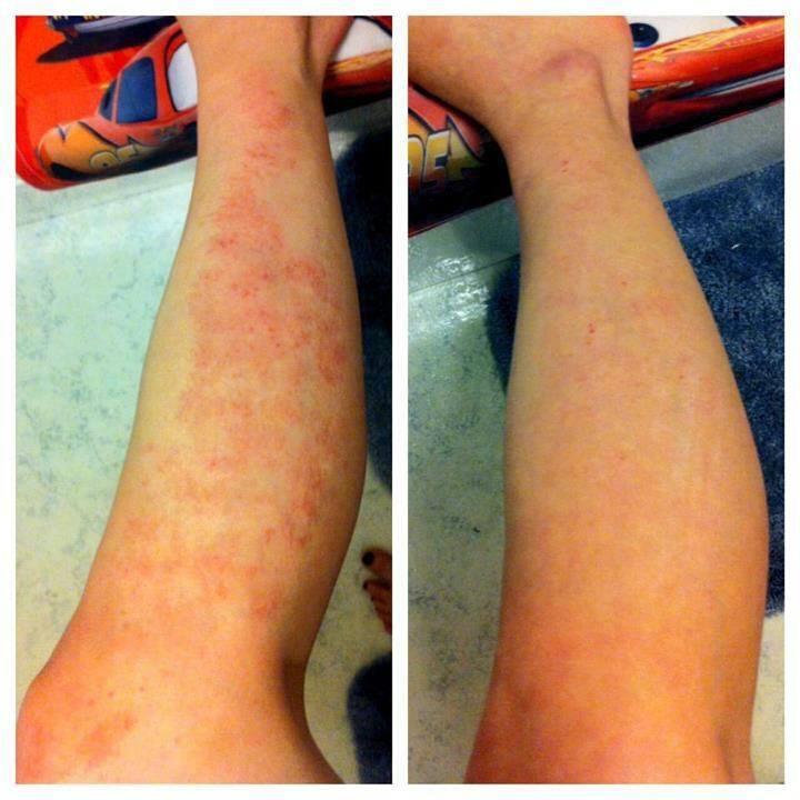 Eczema Body