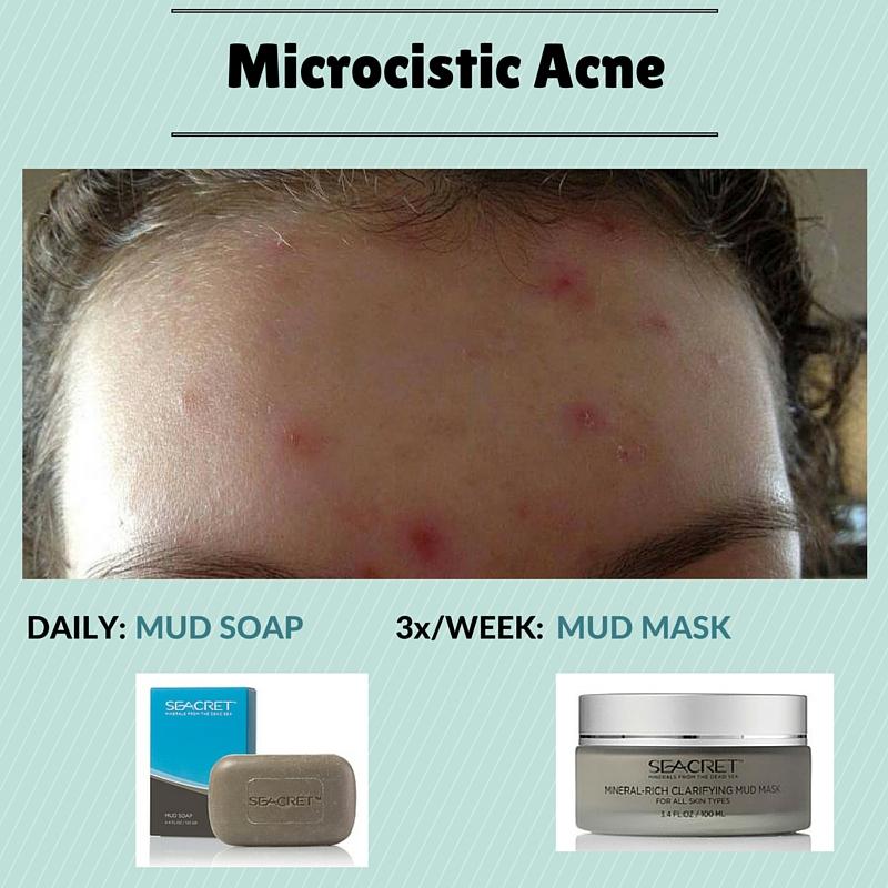 Back Acne Regimen