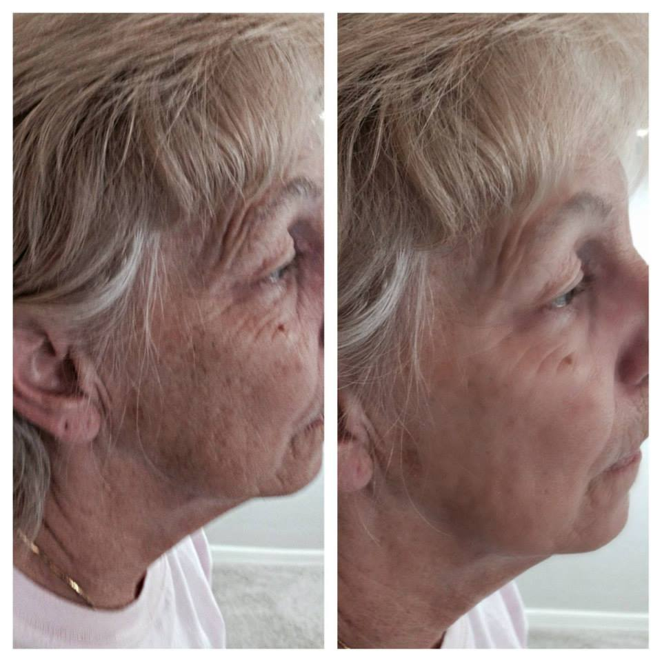 Natural Aging Skin Care Results