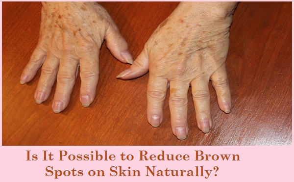 Is It Possible to Reduce Brown Spots on Skin Naturally?