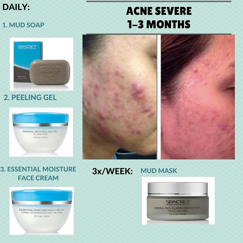 Severe Acne Regimen