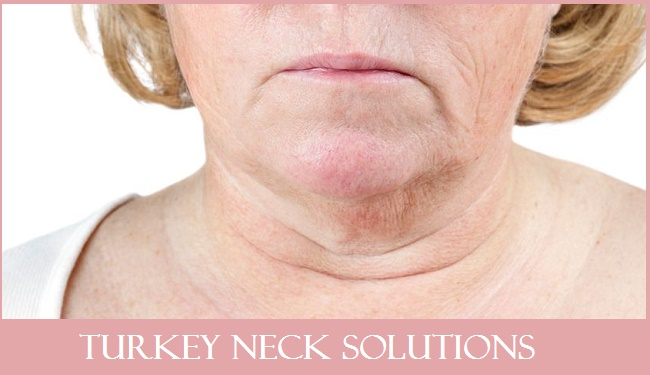 Turkey Neck Solutions