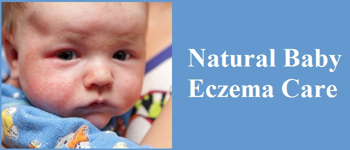 Natural Baby Eczema Care